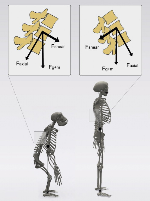 Experimental animal models in scoliosis research  a review of the ... f8e50d1a25e