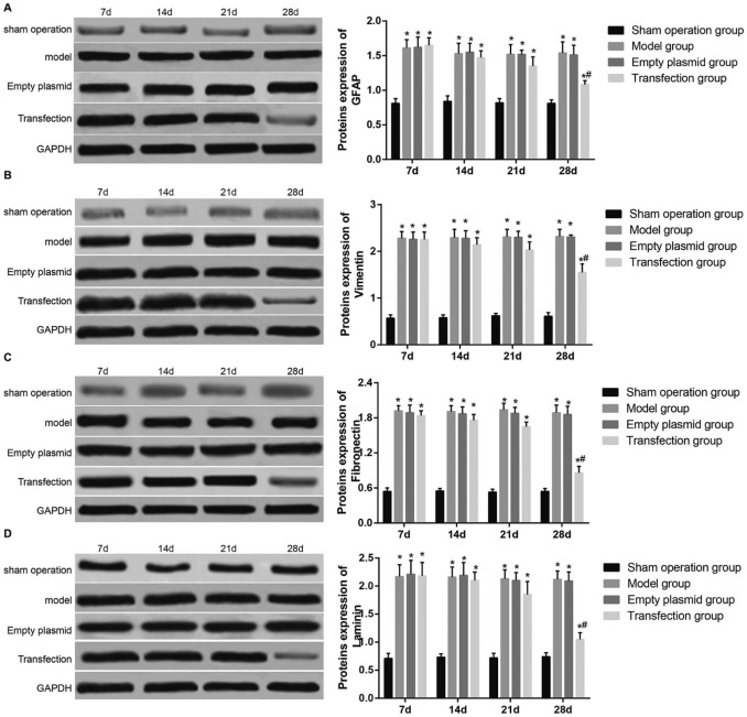 Lentivirus-mediated silencing of the CTGF gene suppresses