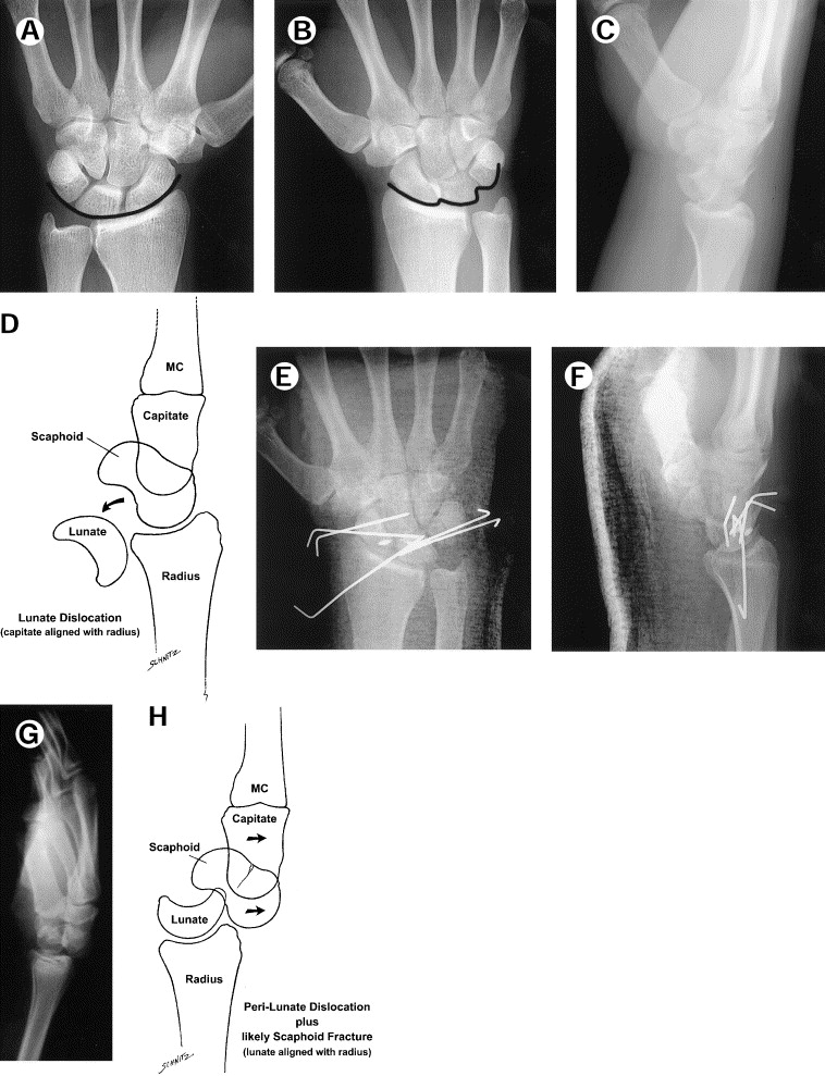 Dislocations of the wrist: carpal instability complex - ScienceDirect