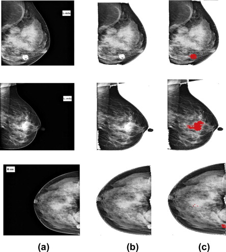 Computer Aided Detection Of Breast Cancer On Mammograms A Swarm