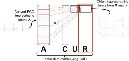 Finding representative electrocardiogram beat morphologies with CUR