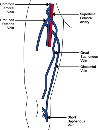 Case Report A Rare Orientation Of Femoral Artery And Vein