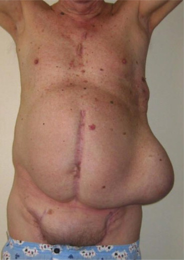 A Case of Large Recurrent Perigraft Seroma after Axillobifemoral