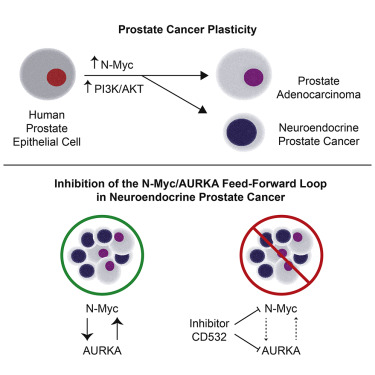neuroendocrine cancer and prostate