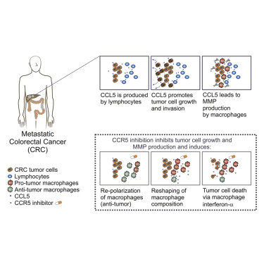 Tumoral Immune Cell Exploitation In Colorectal Cancer Metastases Can Be Targeted Effectively By Anti Ccr5 Therapy In Cancer Patients Sciencedirect