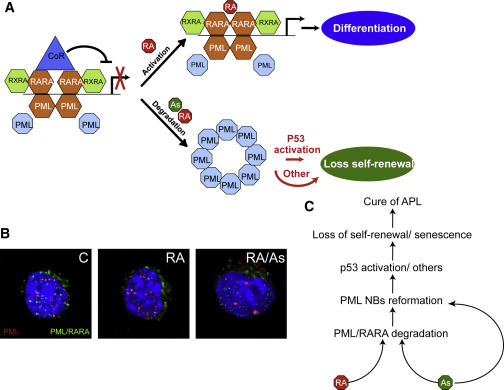 Acute Promyelocytic Leukemia: A Paradigm for Oncoprotein-Targeted