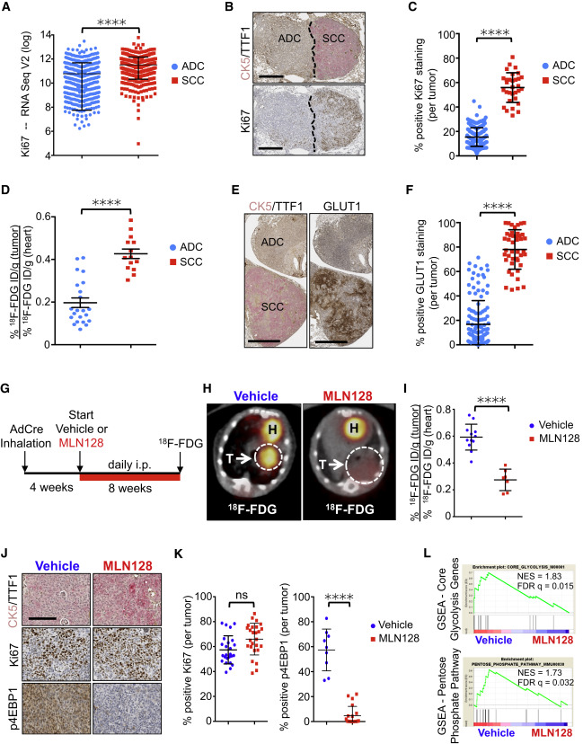 The GSK3 Signaling Axis Regulates Adaptive Glutamine