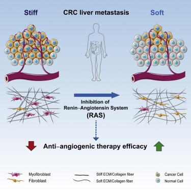 Reduction Of Liver Metastasis Stiffness Improves Response To Bevacizumab In Metastatic Colorectal Cancer Sciencedirect