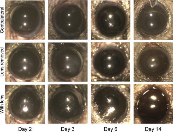 A novel murine model for contact lens wear reveals