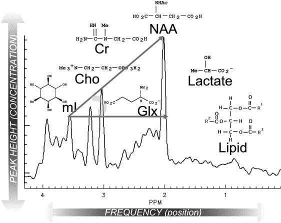 Efficacy of Proton Magnetic Resonance Spectroscopy in Neurological ...