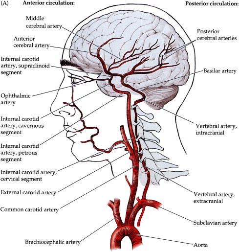 The Role of Interventional Radiology in Cerebrovascular Disease: A ...