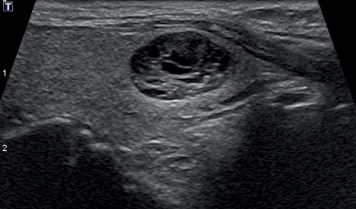 Thyroid Ultrasound Reporting Lexicon White Paper Of The Acr