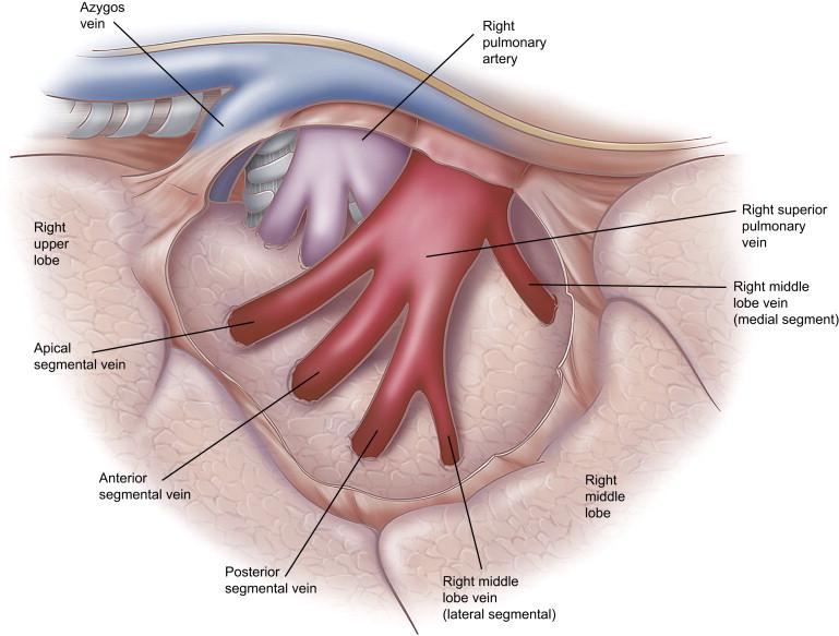 Pulmonary Vascular System And Pulmonary Hilum Sciencedirect