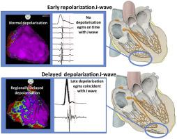 Depolarization Versus Repolarization Abnormality Underlying