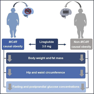 Patients With Obesity Caused By Melanocortin 4 Receptor Mutations Can Be Treated With A Glucagon Like Peptide 1 Receptor Agonist Sciencedirect
