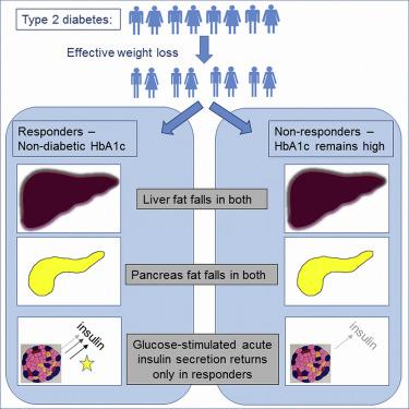 Typ1 vs diabetes tipo 2