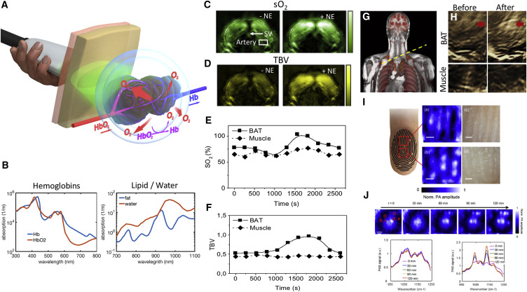 Emerging Technologies to Image Tissue Metabolism - ScienceDirect