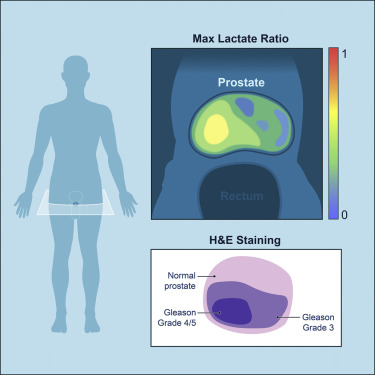 dimensioni prostata e volume 2