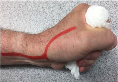 Back hand approach to radial access: The snuff box approach