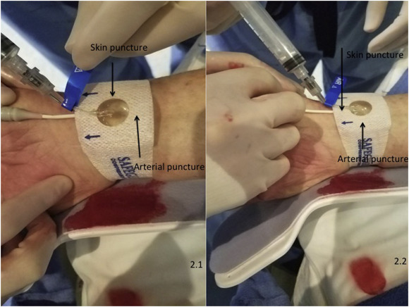 Effect Of Hemostatic Device On Radial Artery Occlusion A Randomized