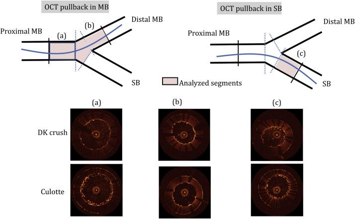 Feasibility of a porcine arteriovenous shunt model for assessment of