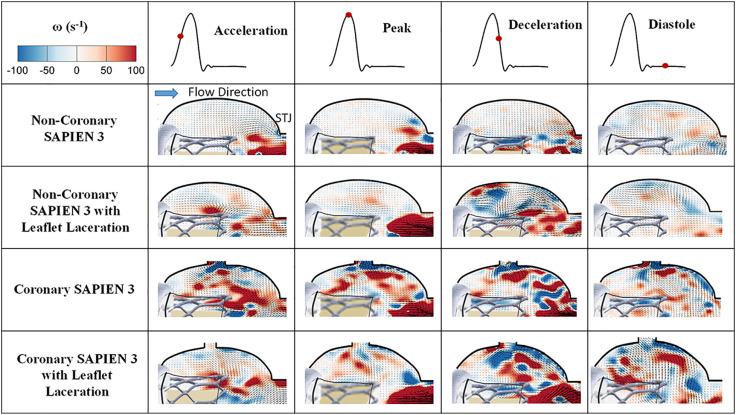 Impact of BASILICA on sinus and neo-sinus hemodynamics after