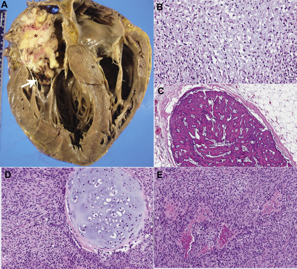 The 2015 WHO Classification of Tumors of the Heart and