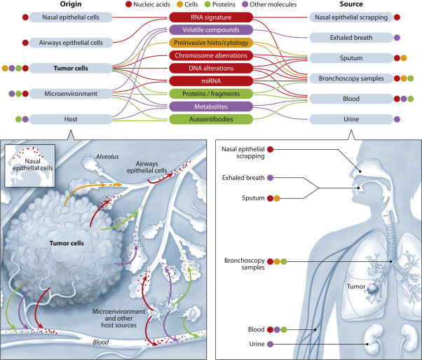 Biomarkers In Lung Cancer Screening Achievements Promises And Challenges Sciencedirect