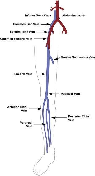Lower Extremity Venous Doppler - ScienceDirect