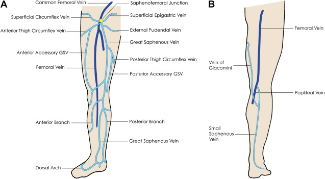 Ultrasound Evaluation Of The Lower Extremity Veins Sciencedirect