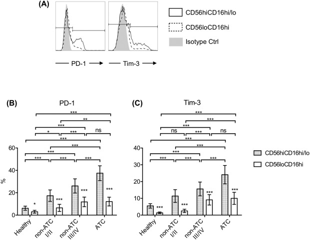 Dysfunction of natural killer cells mediated by PD-1 and Tim