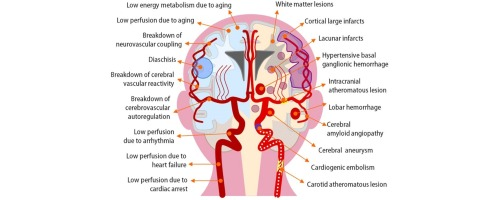 Cerebral circulation in aging sciencedirect download full size image ccuart Gallery