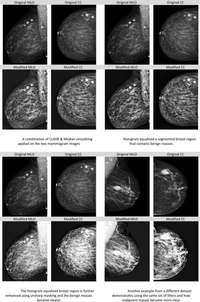 Image result for mammography data set