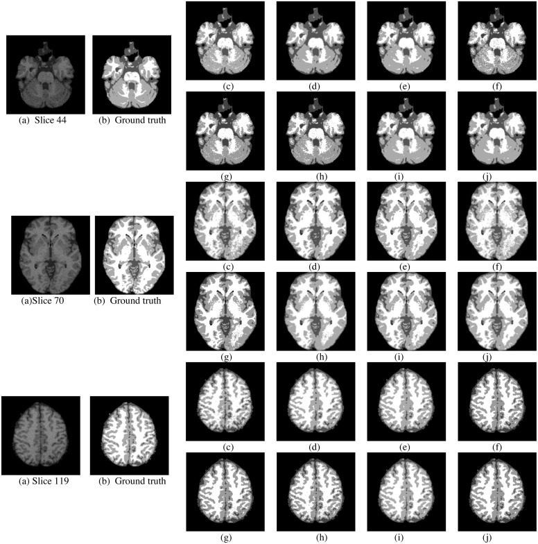 A transform-based fast fuzzy C-means approach for high brain