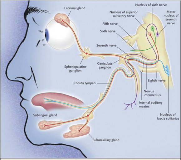 Herpes virus in facial nerves
