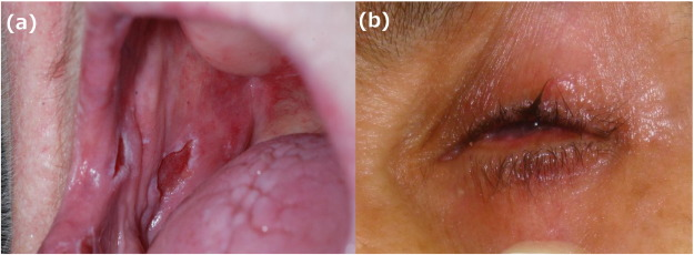 Oral mucosal manifestations of autoimmune skin diseases - ScienceDirect