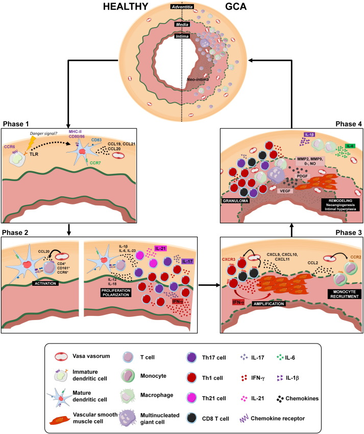 Recent advances in our understanding of giant cell arteritis