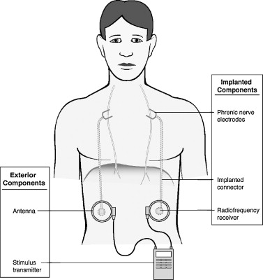 Phrenic nerve stimulation in patients with spinal cord