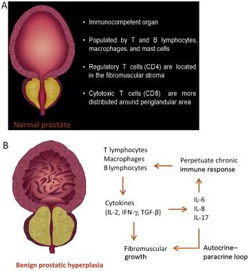 Prostate 2 hiperplázia)
