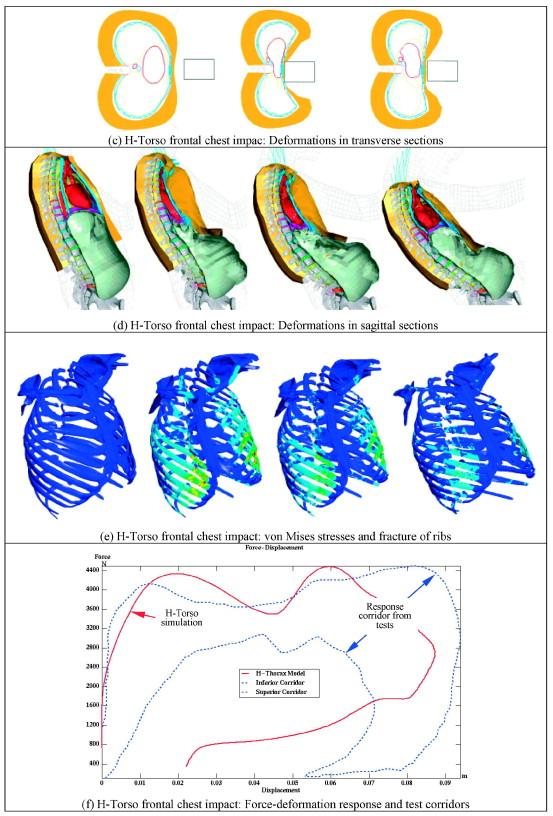 Human Models for Crash and Impact Simulation - ScienceDirect