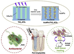 Engineering Nanotubular Titania With Gold Nanoparticles For Antibiofilm Enhancement And Soft Tissue Healing Promotion Sciencedirect