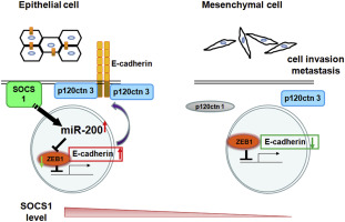 Suppressor Of Cytokine Signaling 1 Modulates Invasion And Metastatic Potential Of Colorectal Cancer Cells Sciencedirect