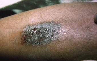 Dermatitis Artefacta: A Review - ScienceDirect