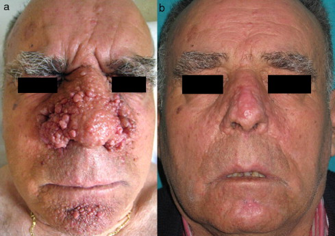 facial angiofibromas Treat