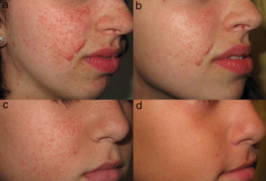 facial angiofibromas Treat