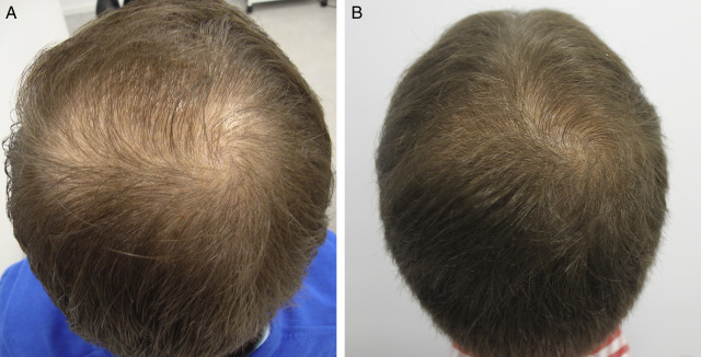 New Treatments For Hair Loss Sciencedirect