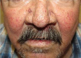 Hereditaria prevencion hemorrágica telangiectasia