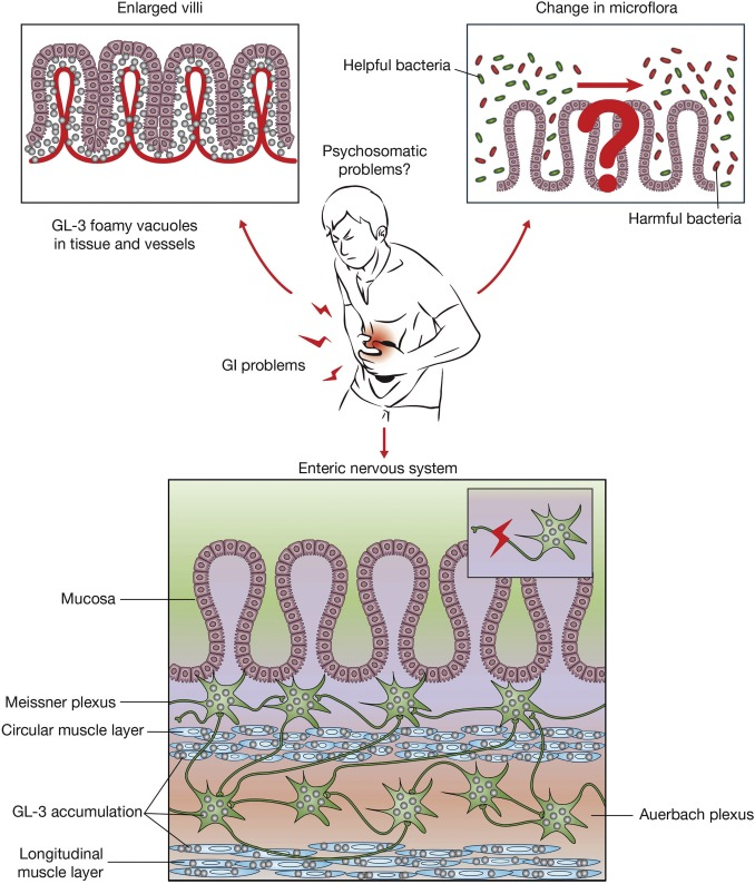Non-specific gastrointestinal features: Could it be Fabry