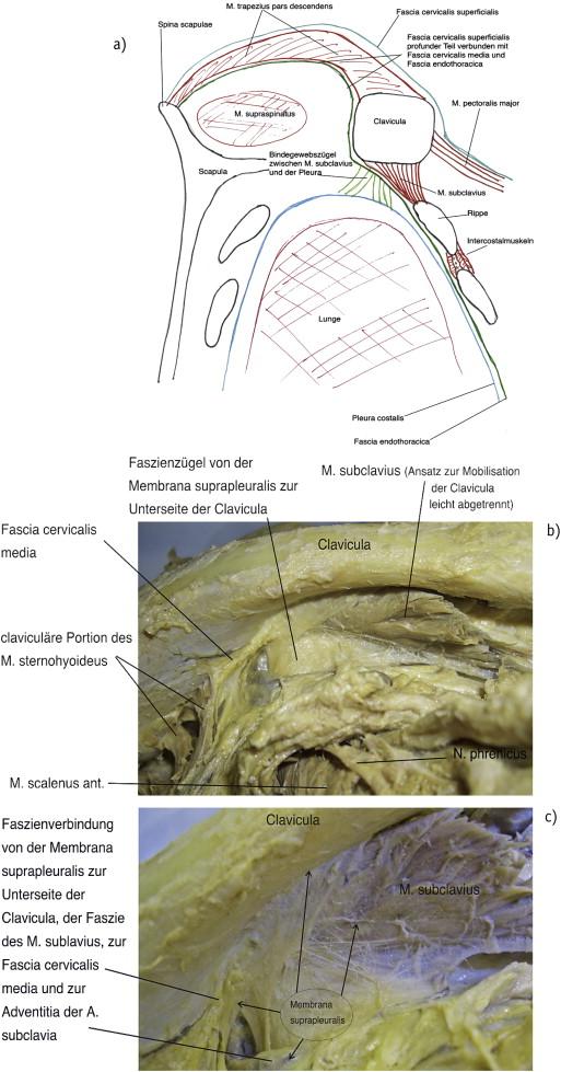 Überlegungen zur Untersuchung und Behandlung der Pleura parietalis ...