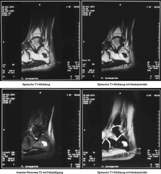 Darstellung Von Knochen Und Knorpel Des Fußes Im Mrt Sciencedirect